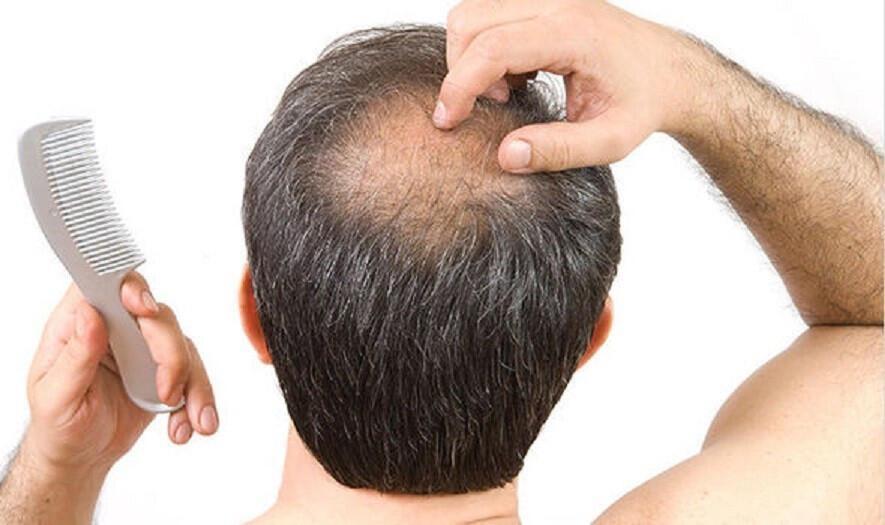 Kovid-19 sonrasında saç dökülmeleri arttı