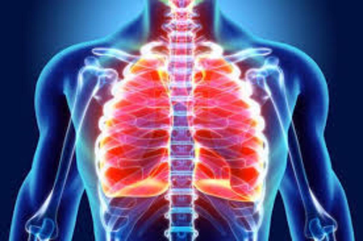Akciğer kanserinin 5 önemli belirtisi - Sağlık Haberleri