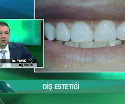 Diş beyazlatmada yaş sınırı var mı?