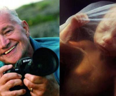 Bebeğin anne karnındaki mucize görüntüleri