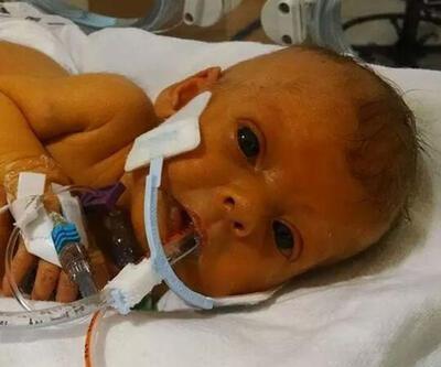 Kaybettiği 6 haftalık kızının fotoğrafına Photoshop yardımı isteyen baba