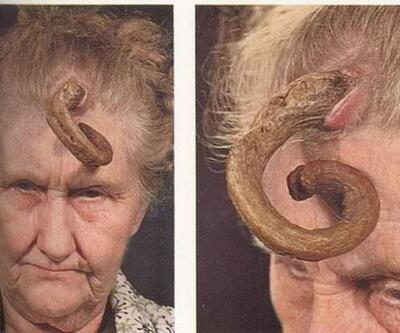 Dünyanın en tuhaf 14 hastalığı