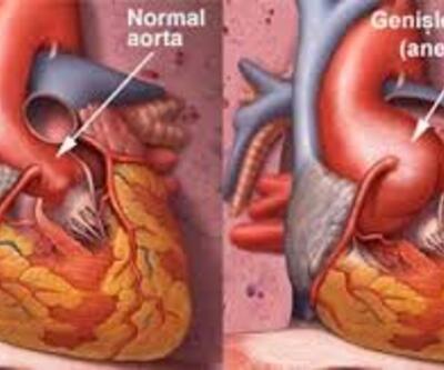 Aort kapak hastalığı nedir? Nasıl tedavi edilir?