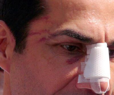 CHPhttps://www.cnnturk.com/haberleri/rusyaRusya39;li Hüseyin Sağhttps://www.cnnturk.com/haberleri/rusyaRusya39;a saldırıda iki gözaltı