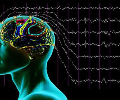 Rüya görürken beyinde bakın neler oluyor...