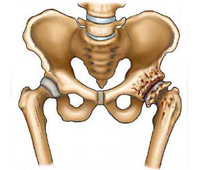 Kalça kemiğinde oluşan hastalıklar nelerdir?