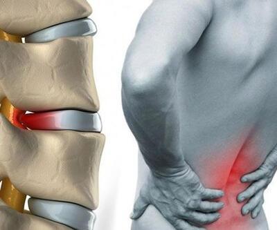 İşinden memnun olmama, bel ağrısında risk faktörü