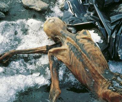 Buzadam Ötzi ülser hastasıymış