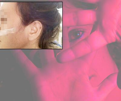 Nişanlısından dayak yedi Erdoğan'a hakaretten ifadeye çağrıldı