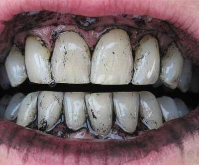 ''Kömürün dişleri beyazlattığına dair hiçbir bilimsel kanıt yok''