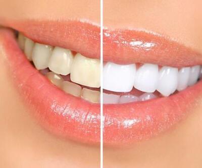 Bu yöntem ile 10 dakikada daha beyaz dişlere sahip olunabilir