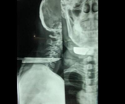 Taksi şoförü ensesinden bıçaklandı