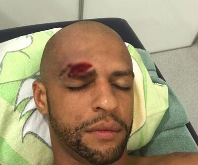 Felipe Melo'nun kaşı açıldı