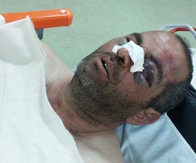 Polis dayağı antrenörü hastanelik etti