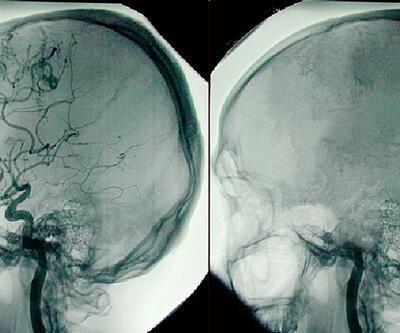 Beyin ölümünün geri dönüşü yok ancak organlar yaşam verebilir