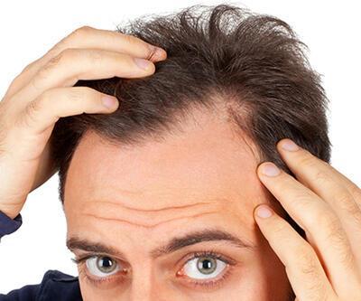 Stres gençlerin saçını döküyor