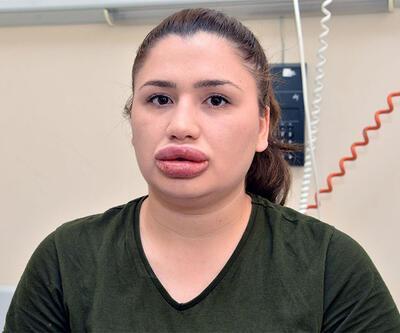 Dudakları şişiren sahte estetikçi, mağdur Merve Keleş'i suçladı