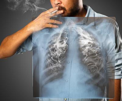 Uzmanlar: 'Akciğer kanserinin yüzde 90'ı sigaradan'