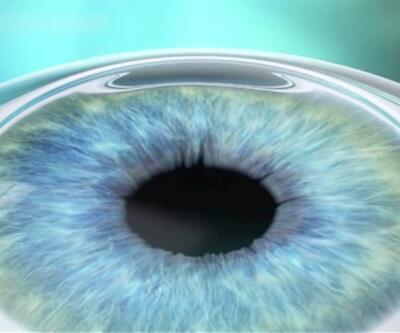 Göz kuruluğu artık ameliyat olmaya engel değil