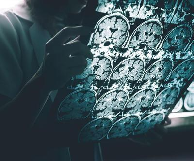 ABD'li bilim insanlarından Alzheimer için büyük buluş