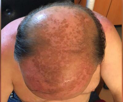Deri kanserinin yüzde 90 sebebi: Güneş yanığına dikkat!