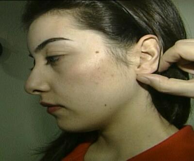 Kulak çınlamasına müzikli tedavi