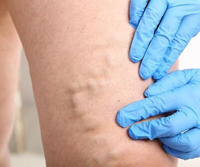 Bacaklarda varis tedavisinin tam zamanı