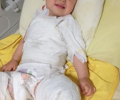Kaynar süt kazanına düşen Ömer bebek, kurtarılamadı