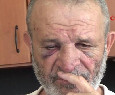 Parasını isteyen avukata müvekkil yakınları saldırdı