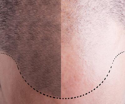 Saç ektirme için en uygun yaş nedir?