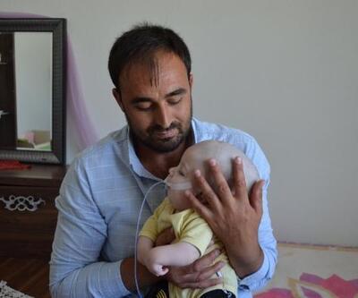 1 yaşındaki Yunus Emre'ye devlet sahip çıktı