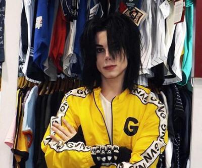 Michael Jackson'a benzemek istedi bu hale geldi! Eski halini görenler ise inanamıyor