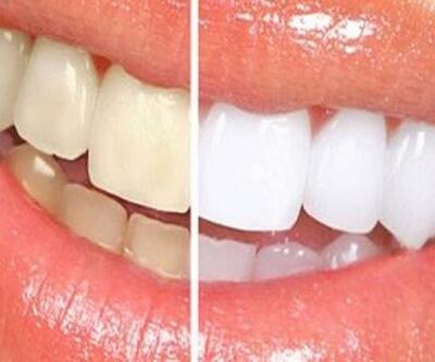 Dişler neden sararır?