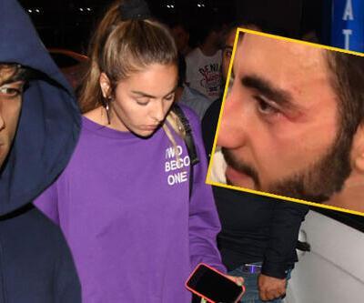 Şok kavga! Reynmen muhabire saldırdı
