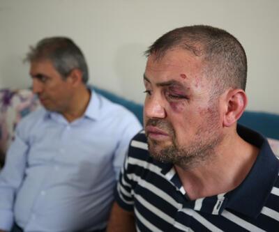 Gazinin dövülmesine ilişkin davada 2 tahliye