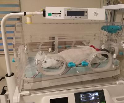 Çöpe atılan bebek kurtarıldı