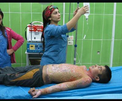 """Dünya Sağlık Örgütü """"beyaz fosfor bombası"""" iddialarını reddetti"""