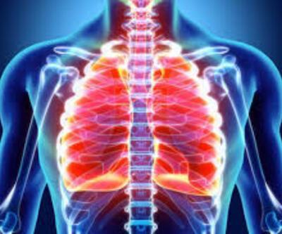 Akciğer kanserinin 5 önemli belirtisi