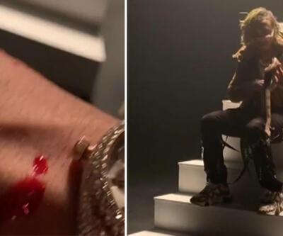 Ünlü rapçiyi klip çekimi için eline aldığı yılan ısırdı