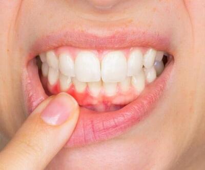 Diş eti hastalıkları kemik erimesine yol açabiliyor