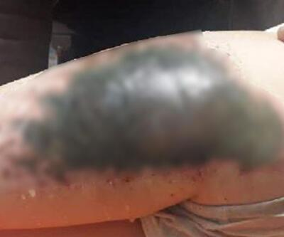 Kar topu oynarken vücutlarında yanık oluşmuştu! Profesörden ailelere uyarı