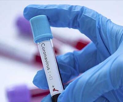 Kan grubu A olanlarda Kovid-19 görülme olasılığı daha yüksek