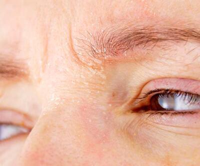 Koronavirüsün gözdeki belirtisine dikkat!