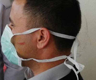 Koronavirüs şüphelisi güvenlik görevlilerine saldırdı