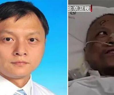 Koronavirüs nedeniyle ten rengi değişen Çinli doktor hayatını kaybetti