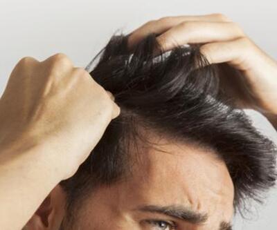5 telden daha fazla saç geliyorsa dikkat
