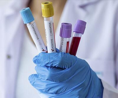 Corona aşısı bulundu mu? Sağlık Bakanlığı'ndan son dakika aşı açıklaması