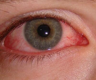 'Çok sık görülmüyor' diyerek uyardı: 'Kırmızı göz' belirtisi!