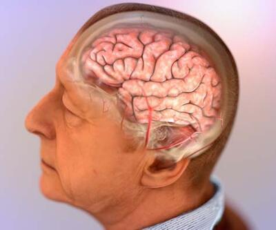 Alzheimer hastalığında glutatyon tedavisi