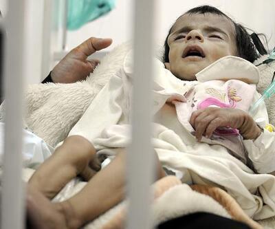 Yemen'de 100 bin çocuğun hayatı tehlikede